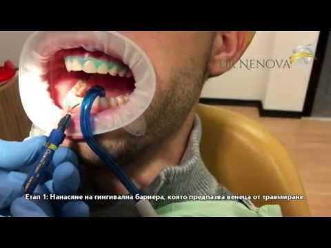 Избелване на зъби с Др. Снежина Ненова
