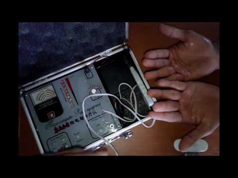 Panduan Hand Akupuntur