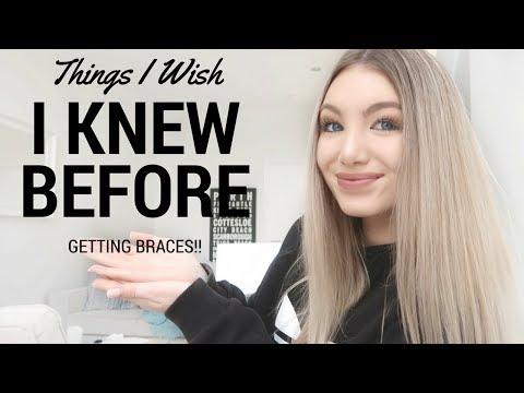 25 Things I Wish I Knew Before Getting Braces