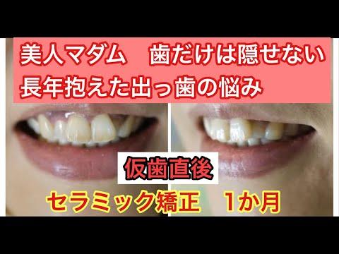 入れる歯の形や色などを親身によく聞いてくれたので安心でした