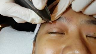 Plasma double eyelid