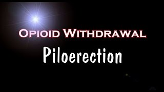 Opioid Withdrawal and Piloerection