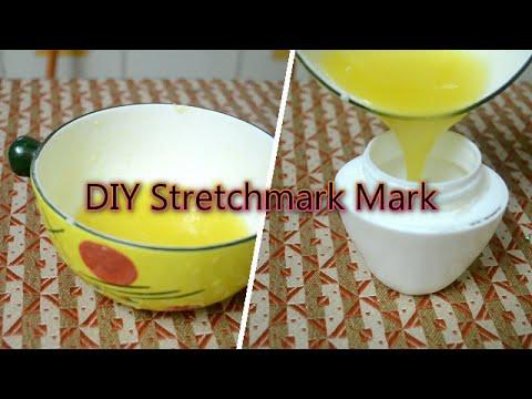 Diy Stretch Mark Cream At Home Prevent Stretch Mark Easily Youtube