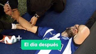 Baixar El Día Después (26/02/2018): No hay dolor