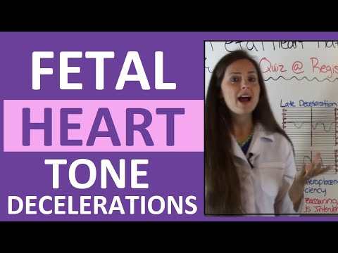 Fetal Heart Rate Tone Monitoring Decelerations | Early, Late, Variable NCLEX OB Maternity Nursing