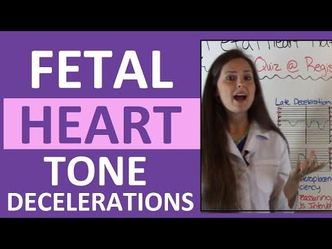Fetal Heart Rate Tone Monitoring Decelerations | Early, Late, Variable NCLEX OB Maternity Nursing thumbnail