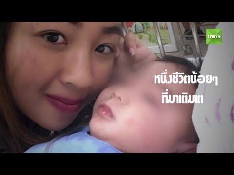 แค่ตัดเล็บ? ลูกอายุ 27 วัน เลือดไหลไม่หยุด ไฉนโคม่าจนตาขวาบอด | Thairath online
