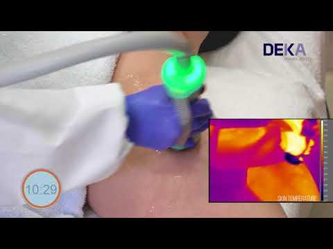 ONDA by DEKA -  Cellulite Treatment Tutorial