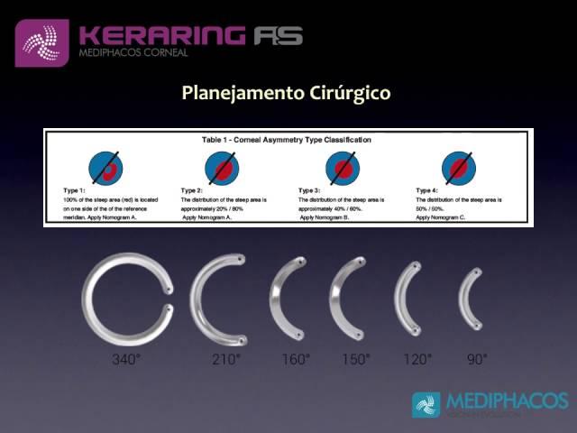 Introdução ao Keraring AS: Mediphacos