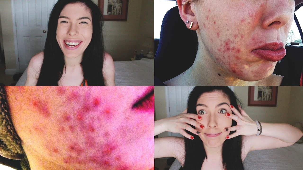 how to get rid of acne on skin
