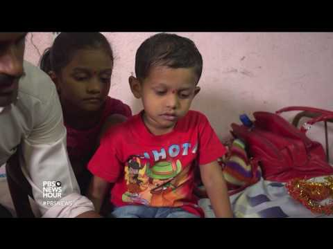 This simple correction for clubfoot is a life changer for kids in India