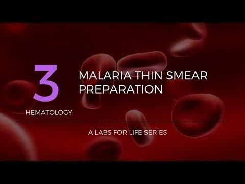 Malaria Thin Smear Preparation