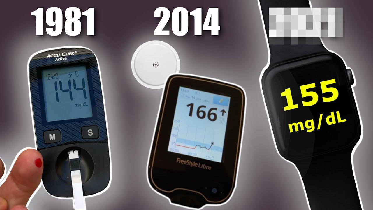 Non-Invasive Blood Sugar Monitor on Apple Watch?!