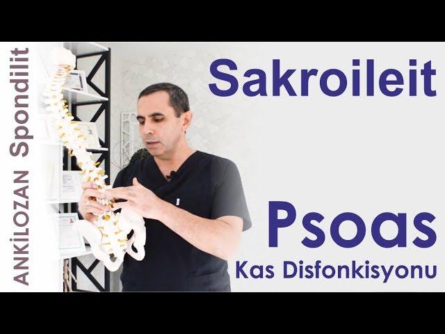 Sakroileit Oluşumunda Psoas Kas Disfonksiyonu - Sağlıklı Bilgi - Dr. Ceyhun Nuri