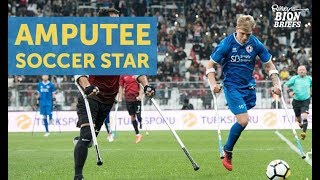 Manchester City's Amputee Soccer Star