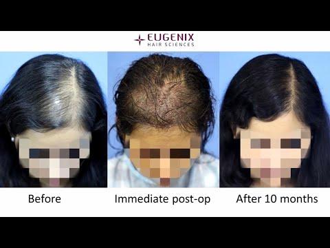 Female Hair Transplant Process Explained By Dr. Pradeep Sethi At Eugenix