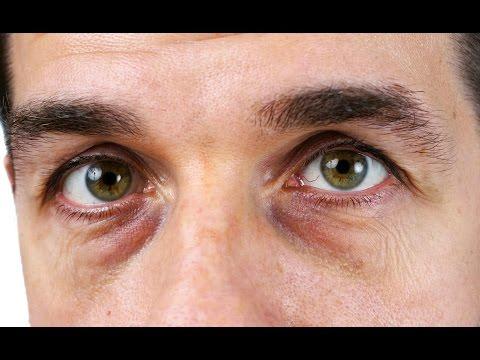 Черные круги под глазами -