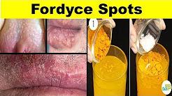 hqdefault - Penis Pimples Sebaceous Prominence