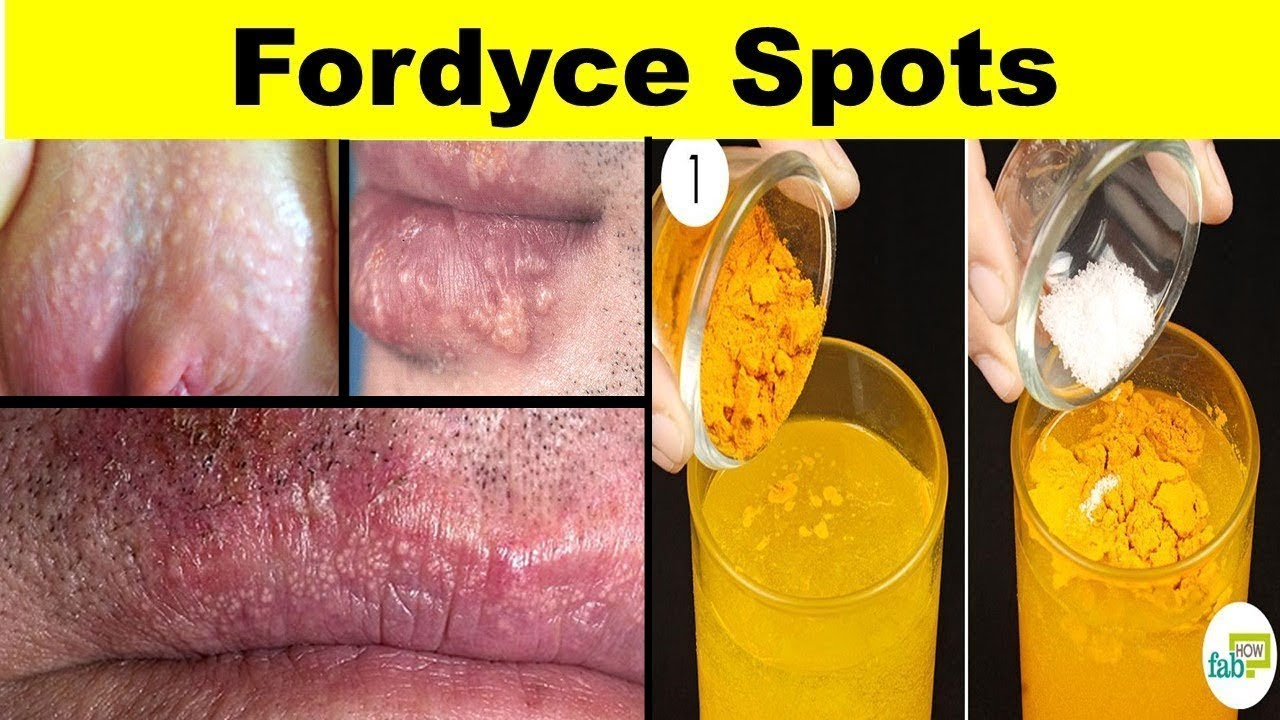 How To Get Ride Fordyce Spots Treatments With Natural Home