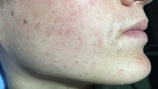 Ángel's Acne Treatment:  Month 4