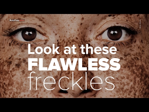 This Woman's Freckles Made Her A Model