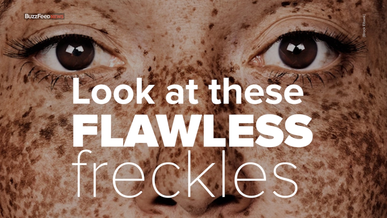 This Woman S Freckles Made Her A Model Youtube