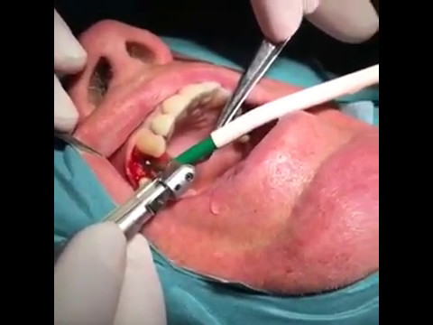 Implantation LIVE! - Diamant-Dent Dental Clinic