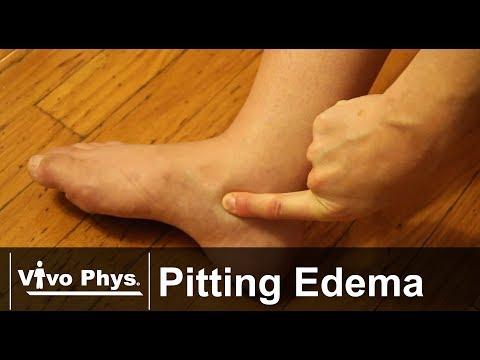 Pitting Edema - Example