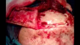 En como la coágulos cabeza de sangre encontrar