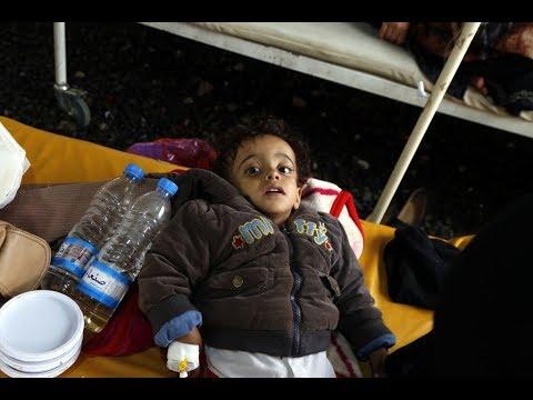 تحذير من عودة انتشار الكوليرا في اليمن  - نشر قبل 3 ساعة