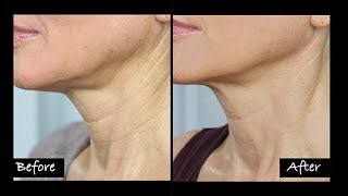 My Experience Getting Ultherapy   Non-Surgical Neck Lift?   Before & After