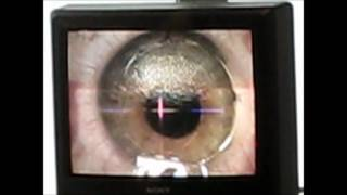 Intralase SBK Eye Surgery
