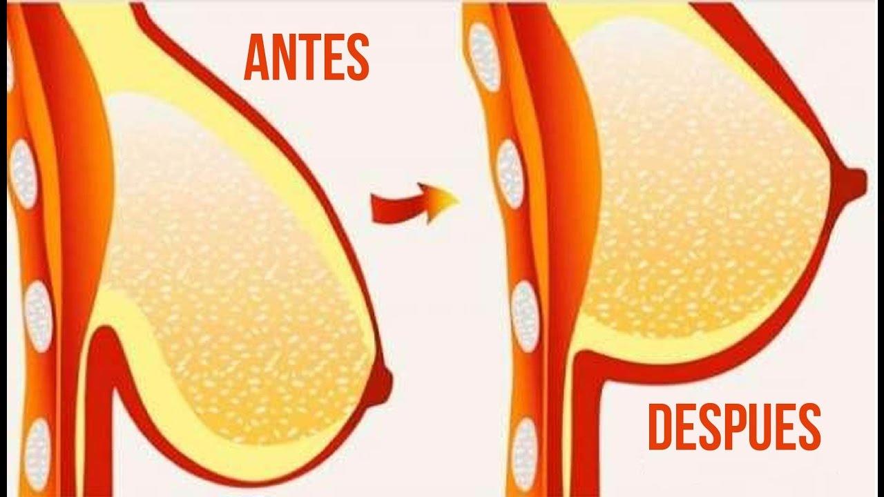 Productos de realce de senos naturales