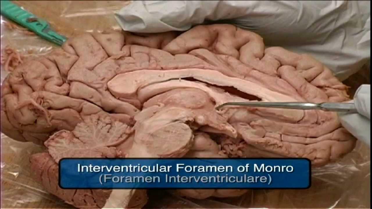 Mammillary Body, Fornix, Foramen of Monro, Pineal Gland, Tectum ...