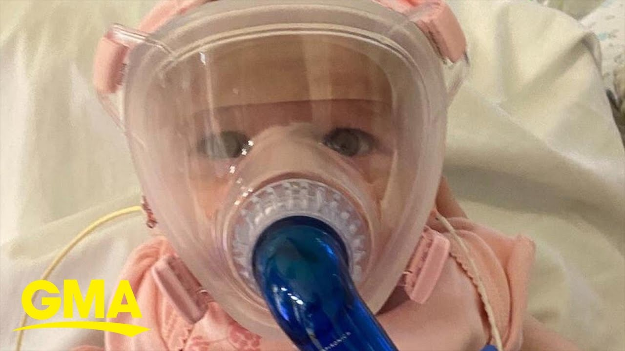 6-month-old survived COVID-19 after having open-heart surgery thumbnail