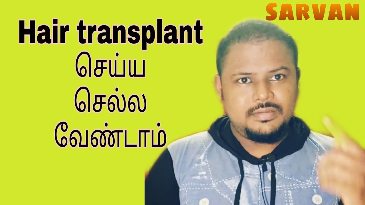 Don't do Hair Transplant (தமிழ்)
