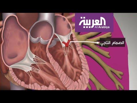 صباح العربية | تقنية جديدة بدل عمليات القلب المفتوح  - 10:54-2019 / 2 / 18