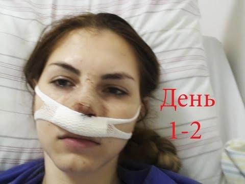Септопластика #2: День операции и первый день после