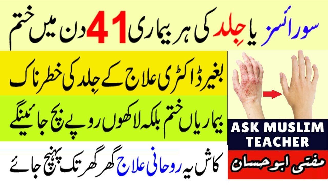 psoriasis treatment in quran)