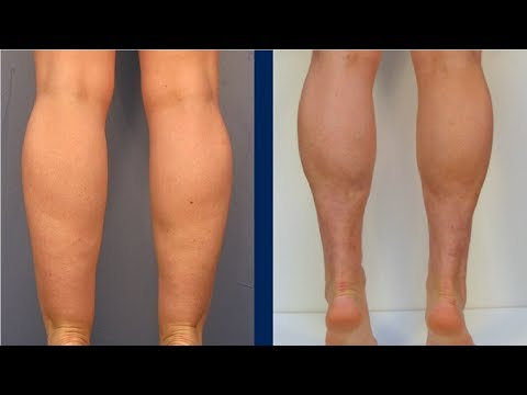 how to get rid of cankles if you are skinny