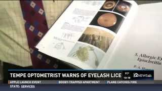 Warnings About Eyelash Lice