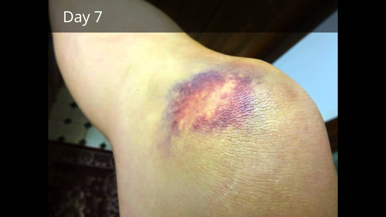 How to cure a bruise 34