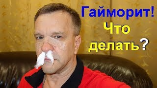 Лечение гайморита в домашних условиях. Гайморит как лечить народными средствами