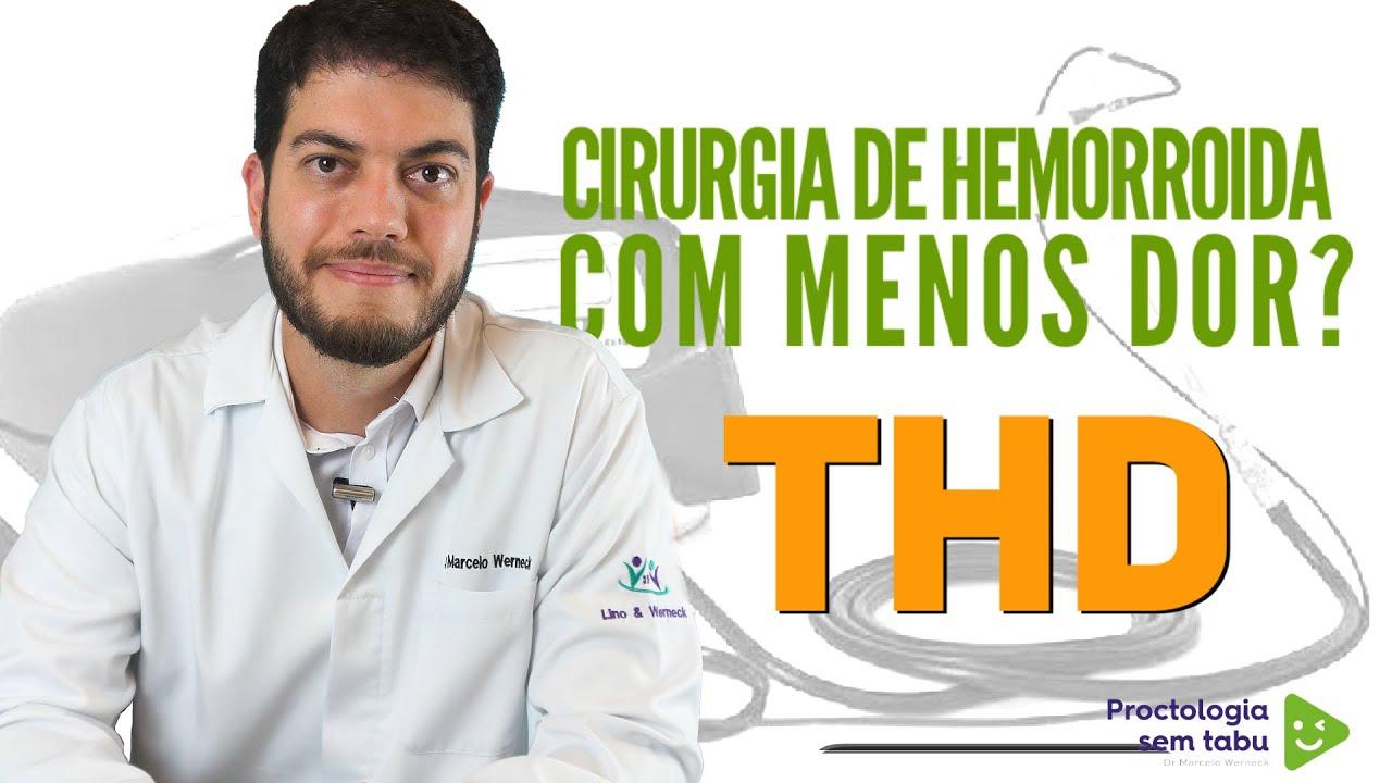 Download Cirurgia de hemorroidas com THD. Tratamento para hemorroidas sem cortes.