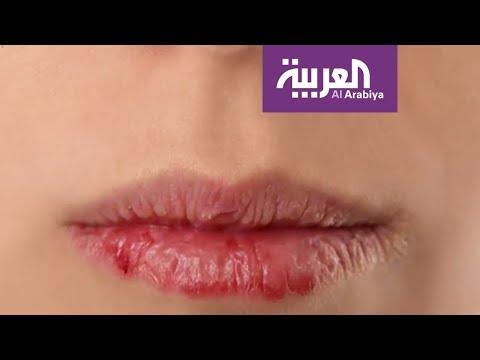 صباح العربية : كيف تحمي شفتيك؟  - نشر قبل 1 ساعة