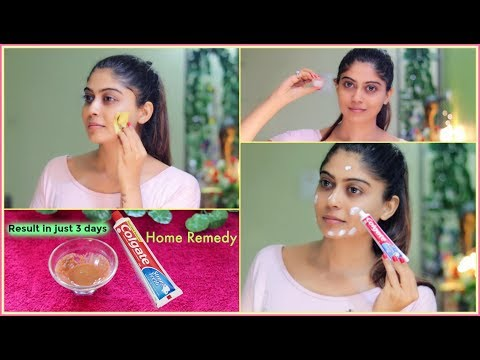 This Face pack Remove Your Dark Spots, Brown Spots, Pigmentation & Pimples in just 3 Days