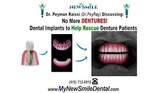Options for Denture Wearers with Nashville, TN dentist Dr. Peyman Raissi