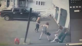 Pitbull attack