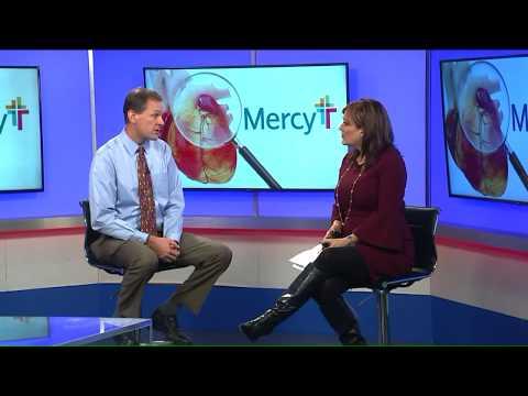 Mercy Hospital offers calcium heart screening