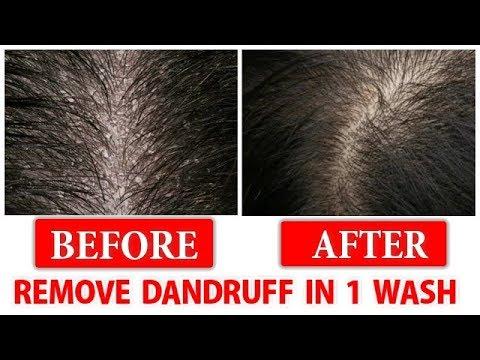 Remove DANDRUFF In